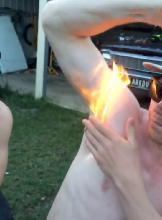 Party Animal Removes HIs Armpit Hair With Fire