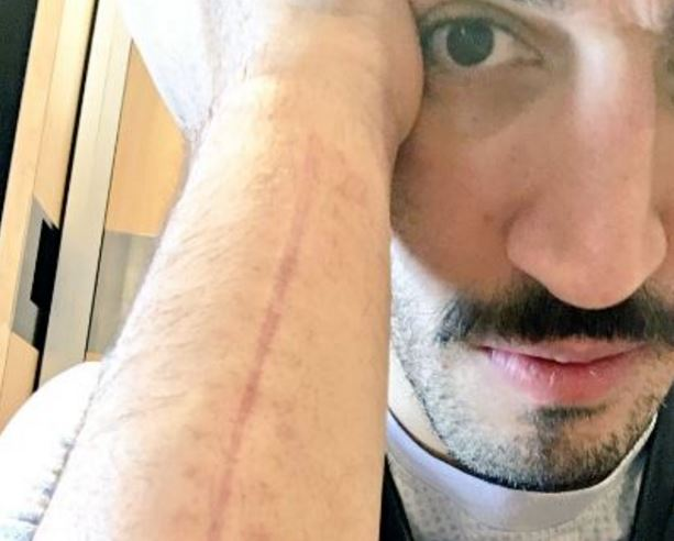 Enes Kanter Celebrated His Return To The Thunder By Showing Off His Scar