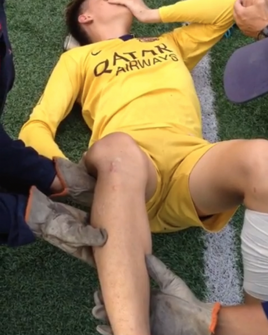 Soccer Player Gets Knee Popped Back Into Place