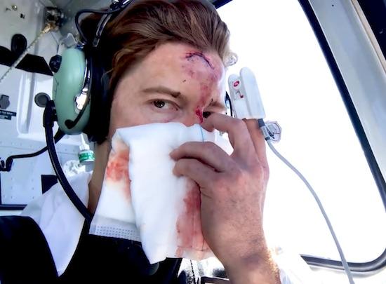 Watch This Crazy Crash By Snowboarder Shaun White