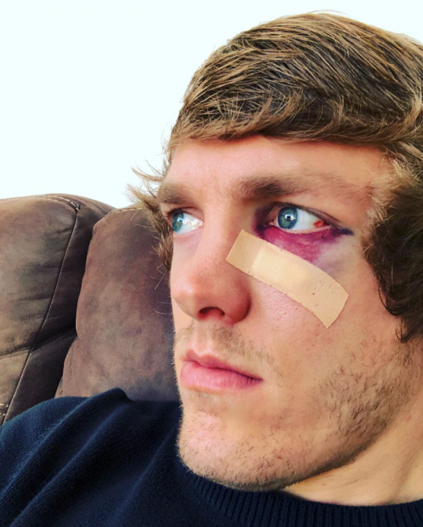 Damn! Anthony Davis Smashed Ron Baker's Face With Dunk