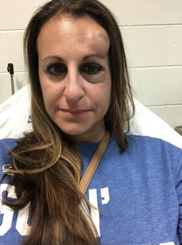 Tampa Bay Lightning Fan Takes Puck To The Face Hires Attorney