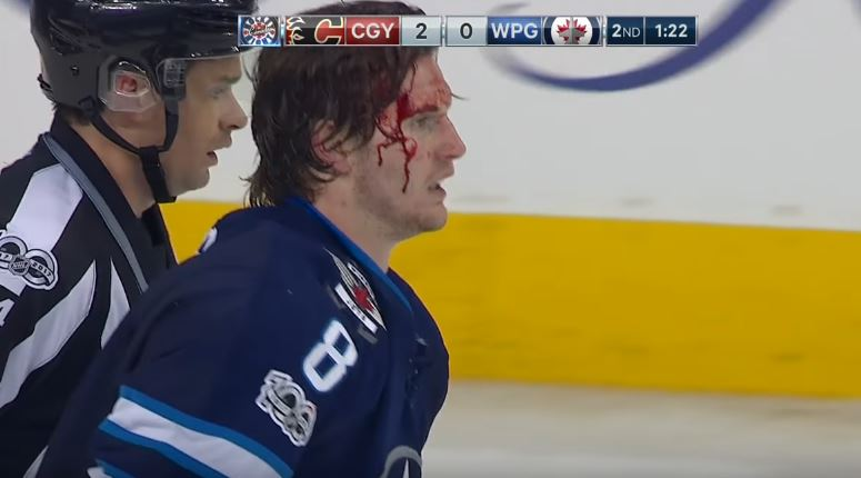 This Is The Best Hockey Fight All Year