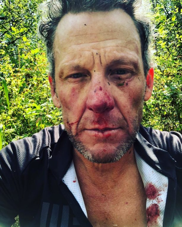 Lance Armstrong Shares Photo Of His Bloody Face After Wiping Out On Bike Trail