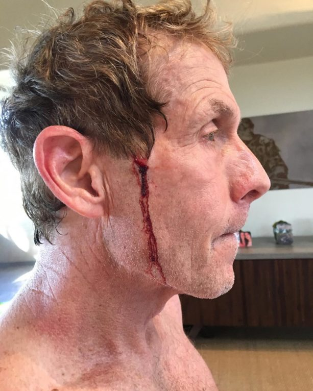 Skip Bayless Claims He Could Outrun LABron – And Then Runs Into Sign